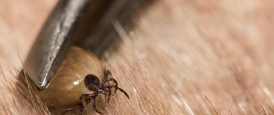 A tick being removed from a dog near Watchung, NJ.
